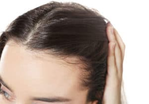 Female Hair Loss Causes Is It Testosterone