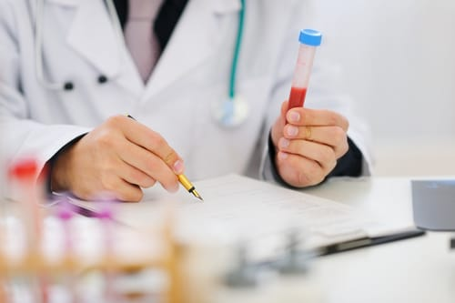 Closeup on hands of medical doctor holding blood sample and making notes. Blood testing is the primary method by which a doctor discovers if Testosterone Replacement Therapy is indicated. Learn more.
